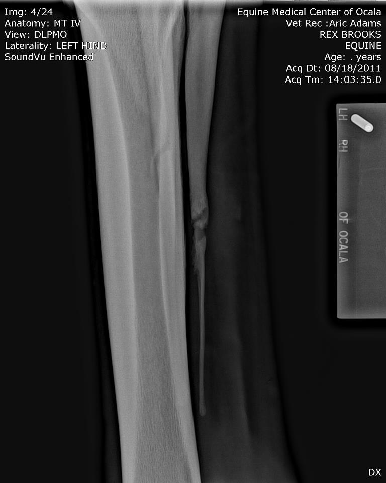This is one example of an x-ray of a horse with a fractured vestigial splint bone, ruining its racing prospects. http://www.horsegroomingsupplies.com/horse-forums/fractured-splint-bone-462116.html