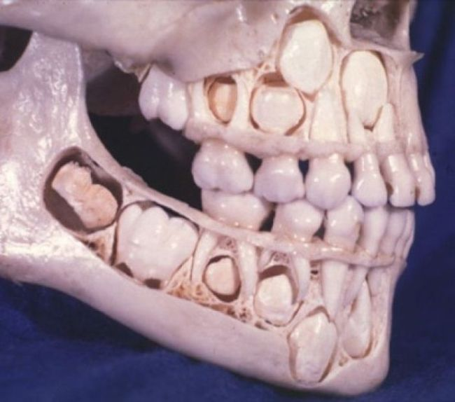 Why do humans shed teeth in adolescence?  Our ancestors, such as reptiles and fish, shed teeth throughout their life (one of the reason fossil shark and alligator teeth are common in some regions).  Today while this trait of shedding teeth unnecessarily is metabolically taxing and unnecessary we continue to because of the genetic programming we received from our teeth shedding ancestors. http://thesymbiont.blogspot.com/2011/01/teeth-why-we-lose-em-and-how-other.html http://todayilearned.co.uk/2011/06/20/childs-skull-with-adult-teeth-preparing-to-change-the-baby-ones/ http://forum.santabanta.com/showthread.htm?324800-Facts-About-Human-Body/page2