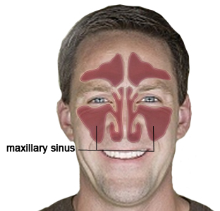 'The maxillary sinus is the site of most sinus infections in humans.  Why?  Because it drains up.  This worked well when our ancestors were quadrupedal and they had more opportunities for drainage.  For today's humans they drain poorly and are traps for bacteria to grow causing sinus infections. http://mysinusinfectionsymptoms.com/paranasal-sinuses/maxillary-sinuses/#!prettyPhoto Also: http://www.ncbi.nlm.nih.gov/pubmed/12793110 http://www.ncbi.nlm.nih.gov/pubmed/21303605' from the web at 'http://www.evolutionevidence.org/wp-content/uploads/2013/08/maxillary_sinuses.jpg'