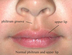 'The philtrum, or ridge above your lip is where during development the two sides of your face seal together.  Why create a face this way, especially when it is so prone to error resulting in cleft palates in 1/700 babies?  It's yet another compromise evolution has made as it made a fish into a human.Watch an animation of this developmental process as the nostrils move from the top of our head (formerly the front, on a fish): http://www.bbc.co.uk/news/health-13278255http://whyevolutionistrue.wordpress.com/2011/05/06/our-inner-fishes/' from the web at 'http://www.evolutionevidence.org/wp-content/uploads/2013/08/philtrum-1.jpg'