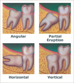 Wisdom teeth aren't so wise.  Our jaws and skulls have evolved to be smaller but our teeth, which are controlled by a different set of genes are slow to catch up. http://www.drshenfield.com/WisdomTeeth.html